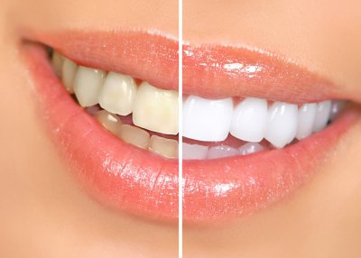 teeth-whitening-in-issaquah